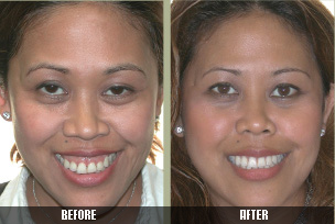 Problem: Gummy smile & protrusion of the eyes. Solution: Lower the lip line & cheek implants.